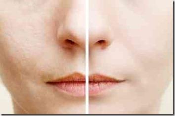 年齢肌と若い肌の差