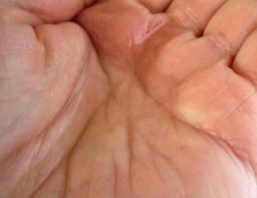 毛穴スキンケア化粧水